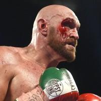 Tyson Fury ar putea debuta in MMA, antrenat de Conor McGregor (VIDEO)